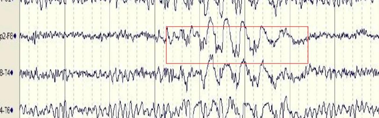 Jornadas Invernales de Epilepsia